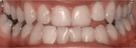 Orthodontics Visalia
